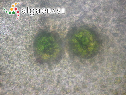Frustulia vulgaris var. elliptica Hustedt