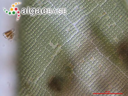 Seirospora viridis Aponte & D.L.Ballantine