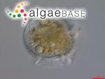 Dinophysis rotundata Claparède & Lachmann