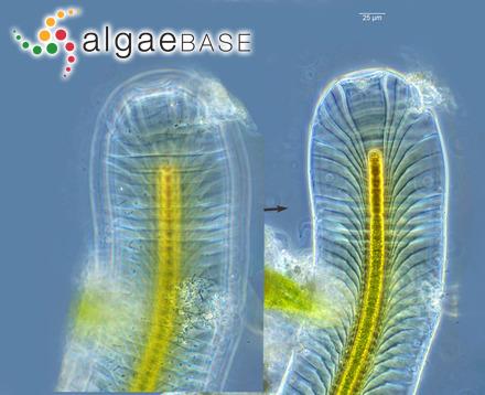 Gomphonema berggrenii Cleve