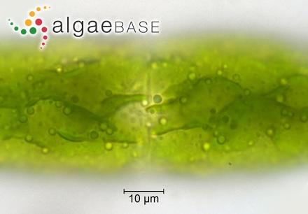 Lithophyllum okamurae f. trincomaliense Foslie