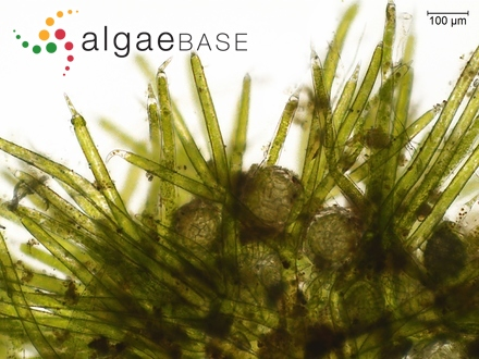 Staurastrum spiniceps var. trifidum A.M.Scott & Prescott