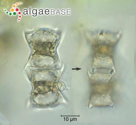 Diploneis crabro (Ehrenberg) Ehrenberg