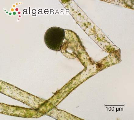 Sphaerococcus fimbriatus var. filiformis Suhr