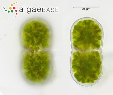 Actinotaenium diplosporum (P.Lundell) Teiling