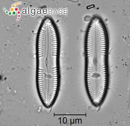 Heteroderma cymodoceae (Foslie) Foslie