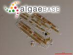 Bacillaria paxillifera (O.F.Müller) T.Marsson