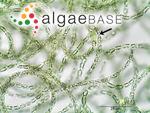 Anabaena flosaquae Brébisson ex Bornet & Flauhault