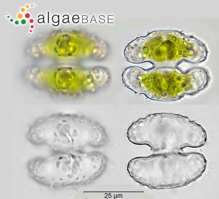 Hormosira articulata (J.Agardh) Zanardini
