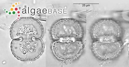Caulerpa delicatula Grunow