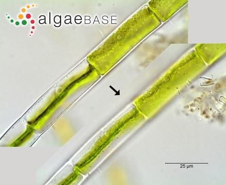 Stenopeltis liagoroides (Yamada) Itono & Yoshizaki