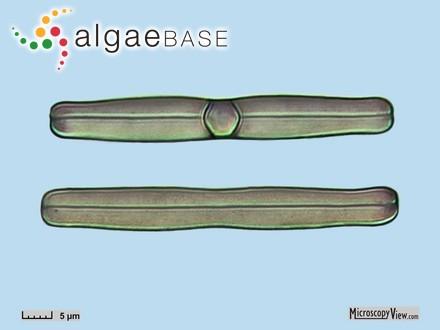 Heterosiphonia plumosa var. tenuior Batters