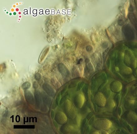 Nitzschia microcephala Grunow