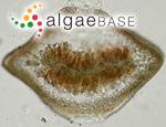 Sphaerococcus corneus var. pulvinatus C.Agardh