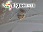Dinophysis norvegica Claparède & Lachmann