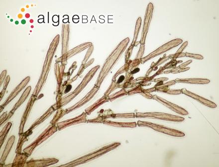 Stictosiphonia gracilis R.J.King & Puttock