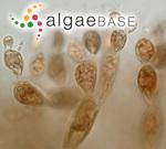 Sphaerococcus distentus (Mertens ex Roth) C.Agardh