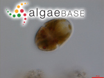 Gymnodinium uberrimum (G.J.Allman) Kofoid & Swezy