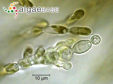 Chondrococcus tripinnatus (Hering) Delf & Michell