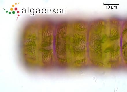 Phymatolithon acervatum (Foslie) W.H.Adey
