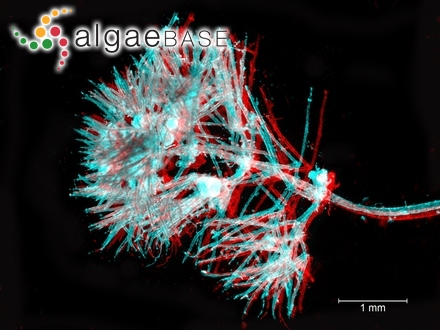 Staurastrum sexangulare var. stellinum (W.B.Turner) Playfair