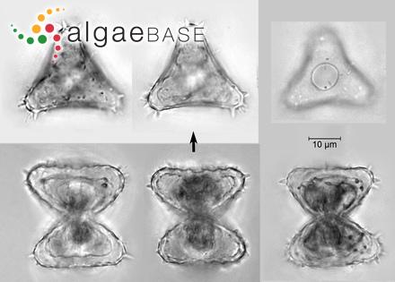 Nitzschia sigma var. rigidula (H.Peragallo & M.Peragallo) Grunow