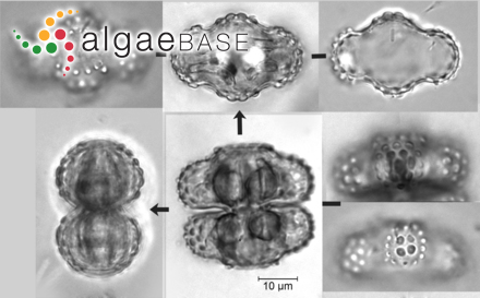 Trachyneis aspera (Ehrenberg) Cleve