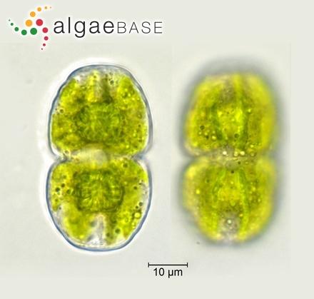 Trachyneis aspera var. intermedia (Grunow) Cleve