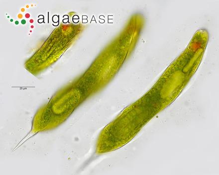 Diatoma elongata var. actinastroides Krieger