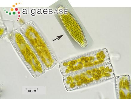 Pinnularia stomatophora f. recta Hustedt