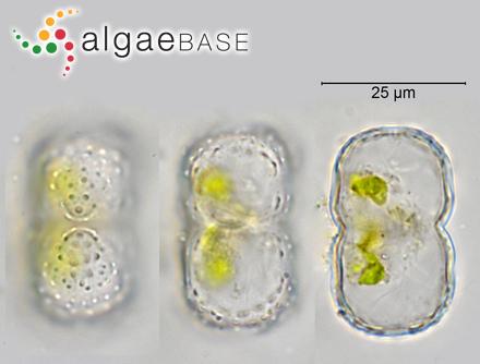 Sarcothalia crassifolia (C.Agardh) Edyvane & Womersley