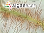 Heteroleibleinia rigidula (Kützing ex Hansgirg) L.Hoffmann