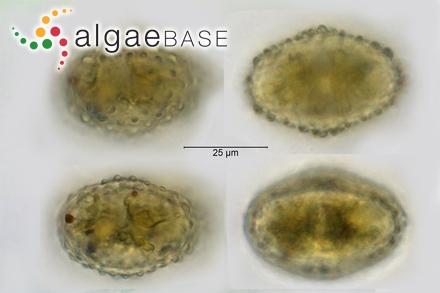 Dermocarpa prasina (Reinsch) Bornet & Thuret