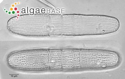 Epithemia gibberula var. producta Grunow
