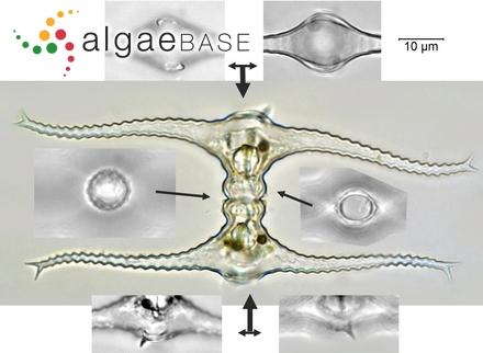 Rhodomela lycopodioides f. cladostephus (J.Agardh) Kjellman