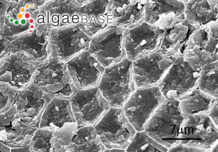 Pleonosporium pusillum Yamada