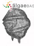 Gonyaulax spinifera (Claparède & Lachmann) Diesing