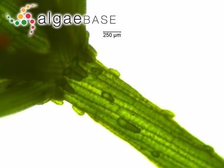 Acanthococcus spinuliger (J.Agardh) J.Agardh