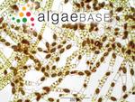 Spirogyra communis (Hassall) Kützing