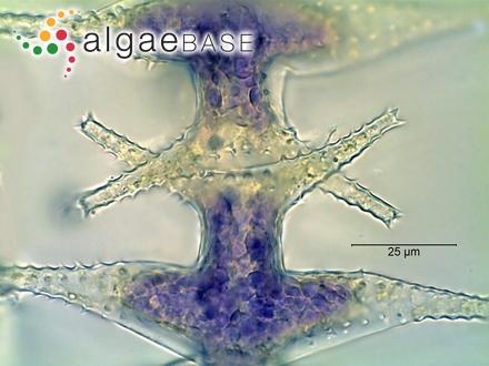 Sargassum biserrula var. prionocarpum Grunow
