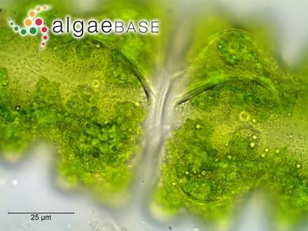 Lithothamnion brassica-florida (Harvey) Areschoug
