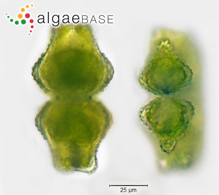 Euastrum verrucosum side views