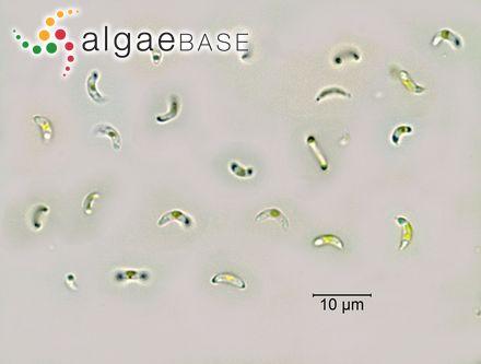 Desmarestia aculeata var. complanata (C.Agardh) Oersted