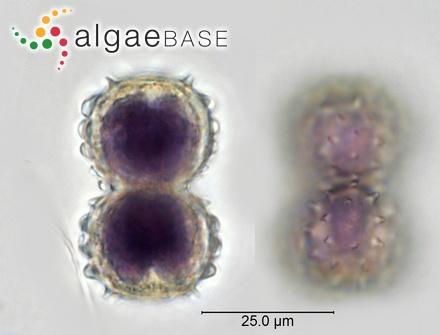 Turbinaria vulgaris var. decurrens (Bory) J.Agardh