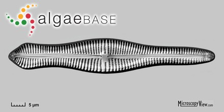 Stenogramma leptophyllum J.Agardh