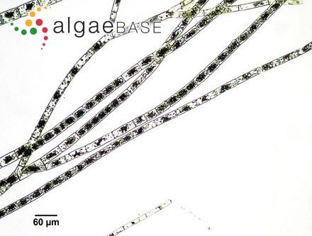 Trachelomonas hispida var. granulata Playfair