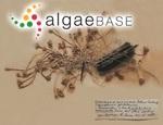 Acetabularia antillana (Solms-Laubach) Egerod