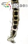 Chaetomorpha linum (O.F.Müller) Kützing