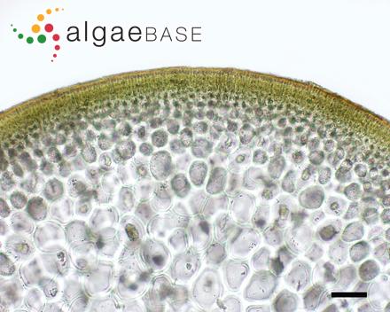 Tolypiocladia condensata (Weber Bosse) P.C.Silva