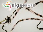 Pedobesia simplex (Meneghini ex Kützing) M.J.Wynne & F.Leliaert